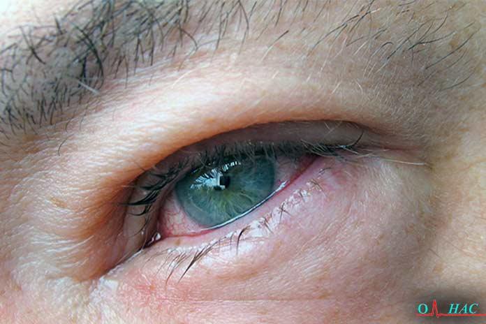 Налитые кровью глаза
